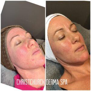 Rosacea before and after treatment photos