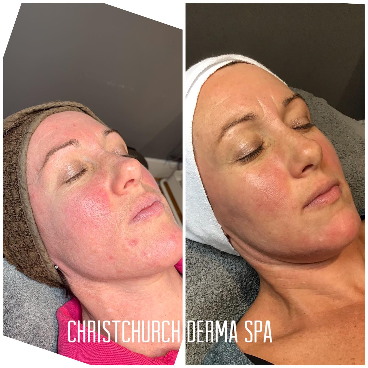 Rosacea before and after photos