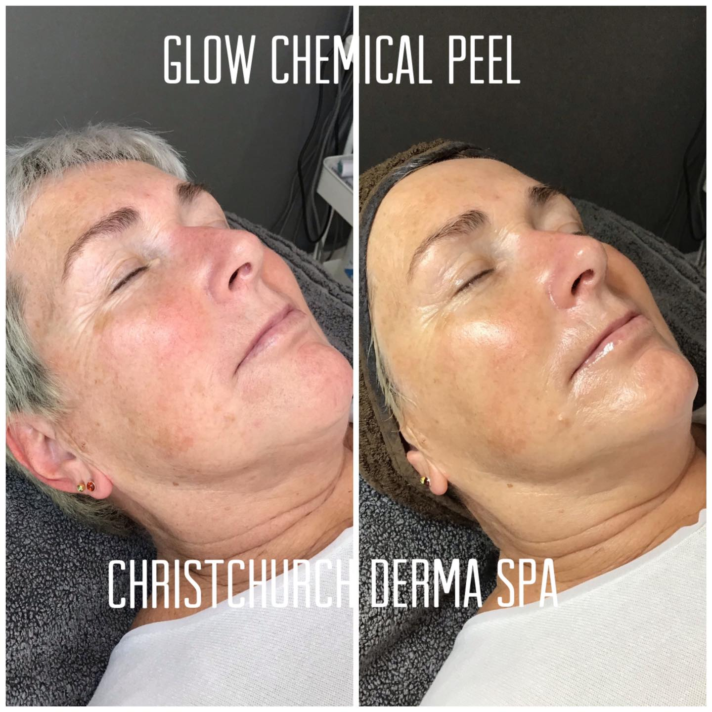 Glow Chemical Peel before and after photos
