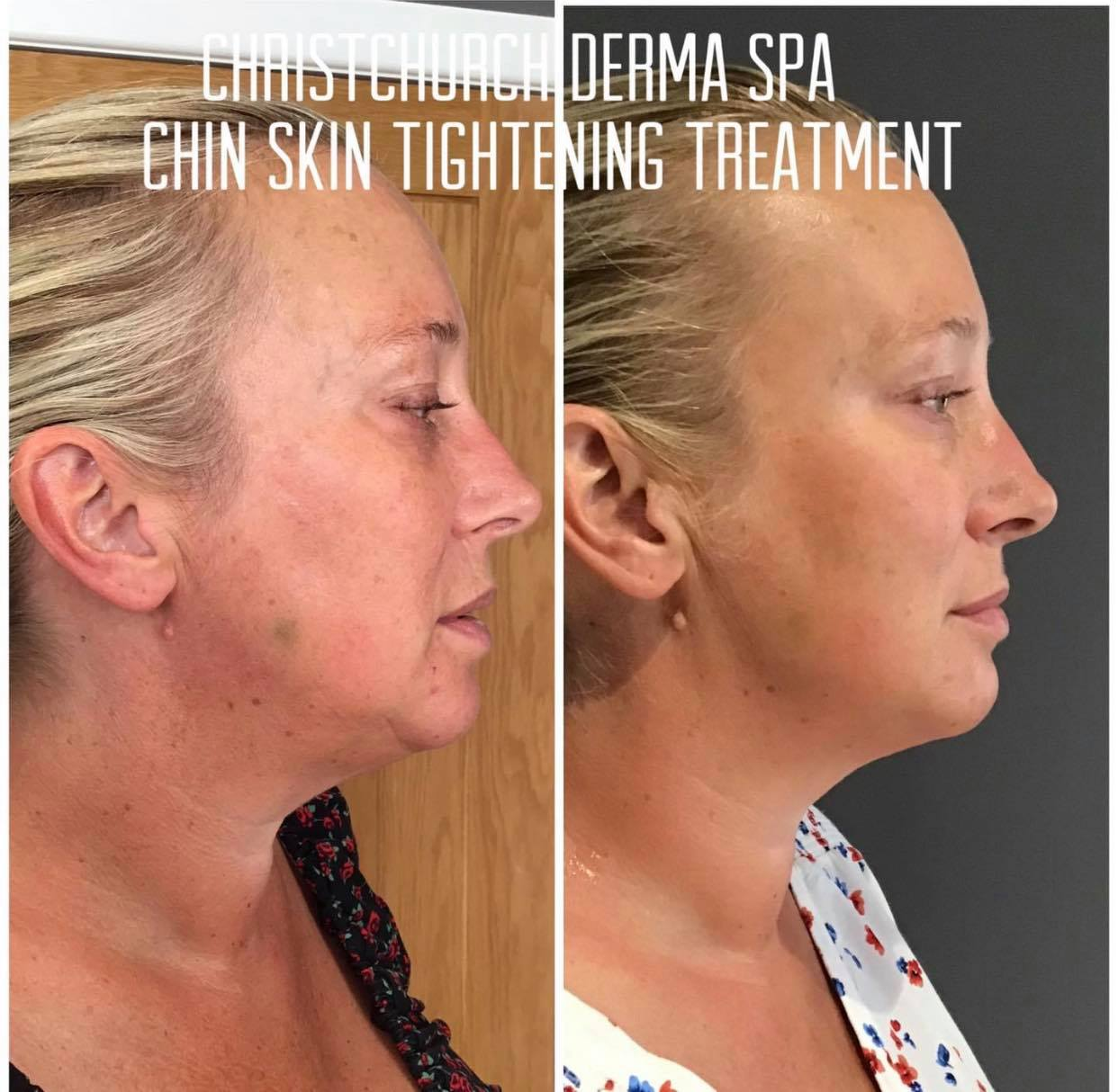 RF Skin tightening chin before and after photos