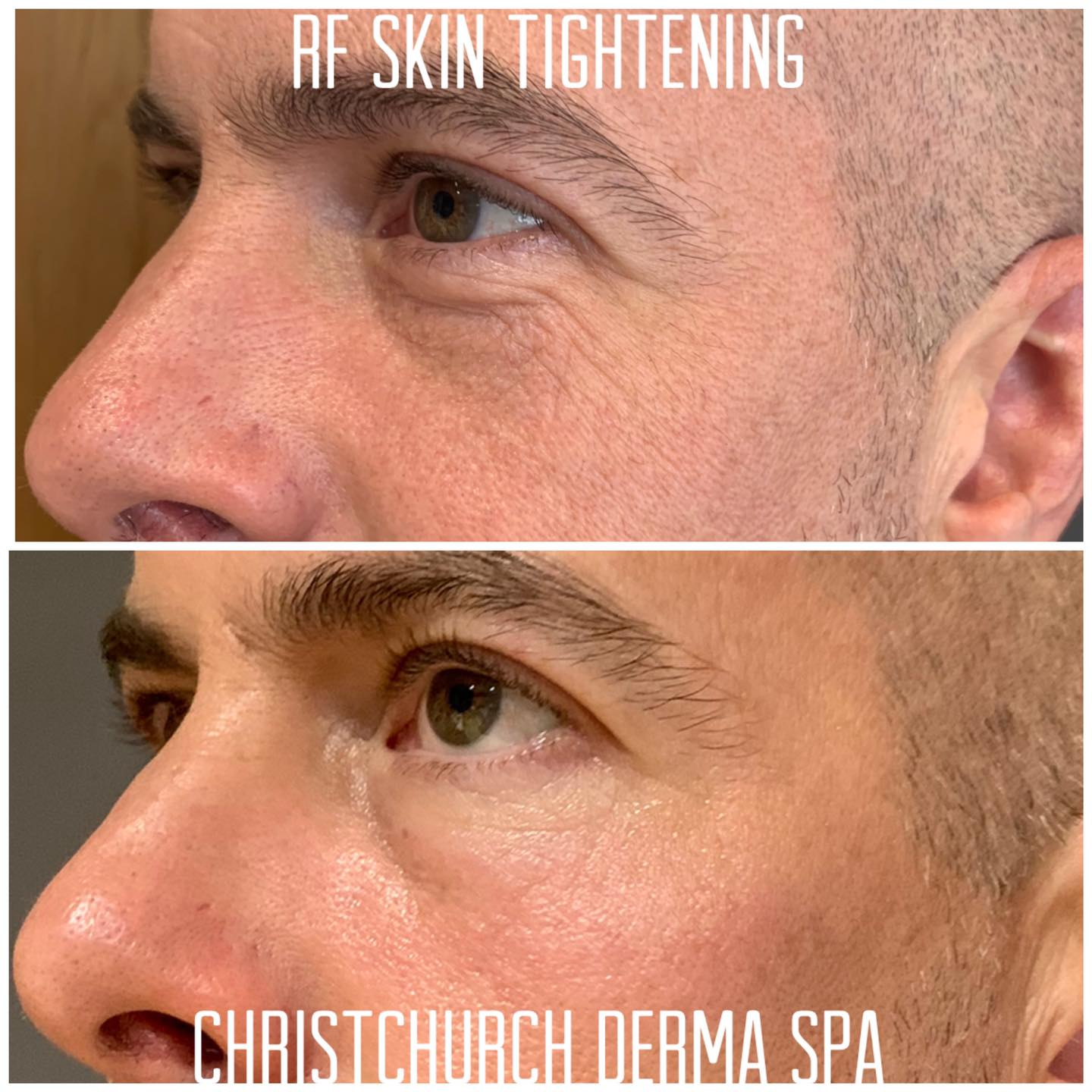 RF skin tightening eyes before and after photos