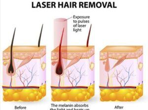 Laser hair removal graphic illustration