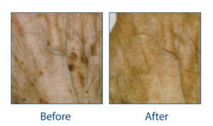 Before and After laser treatment for pigmentation on the hands