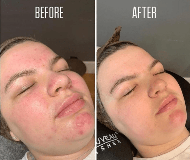 Before and after acne treatment at Christchurch Derma Spa in Dorset