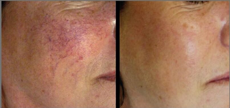 Before and after laser treatment for red vein removal